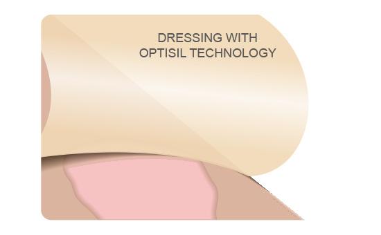 Anti-Adhesion & Painless Removal